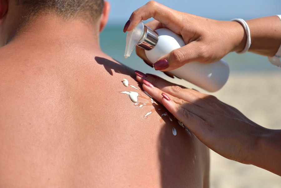 Los Angeles laser skin renewal - Hand of a woman applying sun cream on a male back with sunscreen before sunbathing at the beach. Sunscreen lotion on beach.