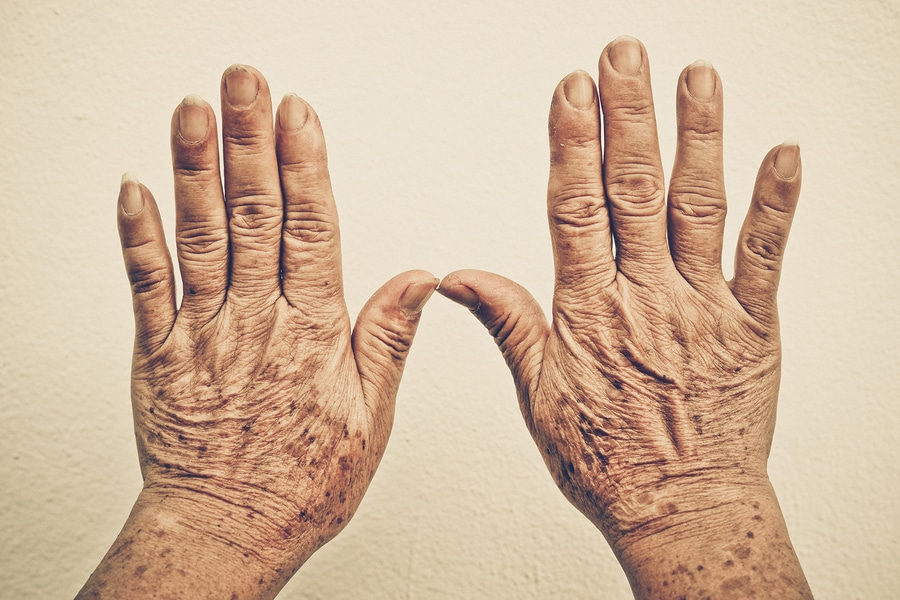 hands of old female after smoking