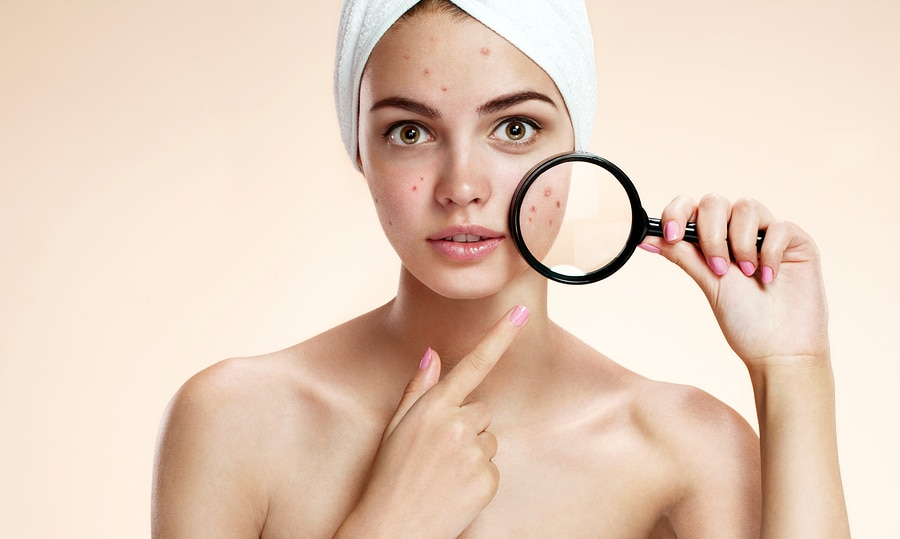 Los Angeles acne therapy - Teen girl with problem skin look at pimple with magnifying glass. Woman skin care concept