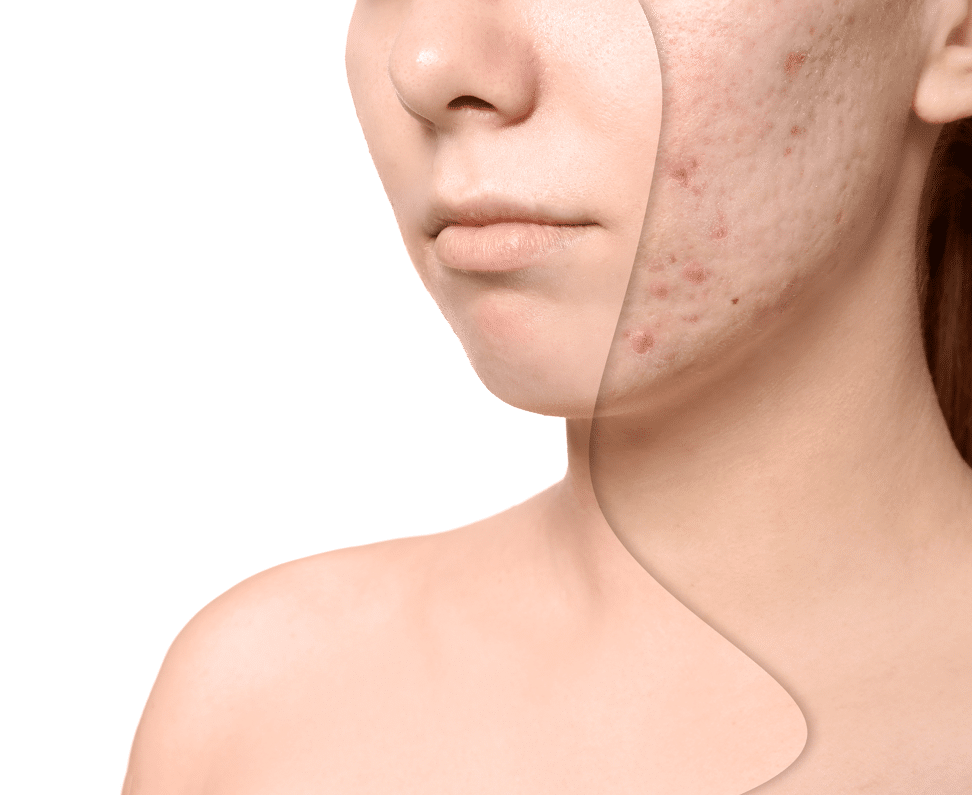 Treatment For Acne Scars Laser Dermatology Institute