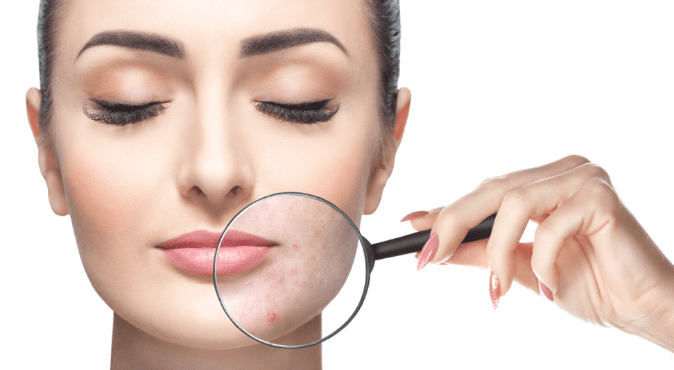 Laser Dermatology for Acne Treatment