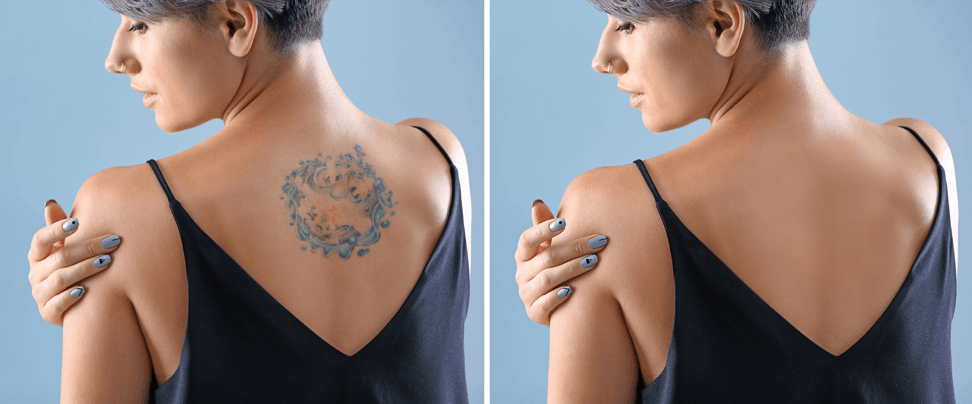 Finding the Right Doctor for Tattoo Removal