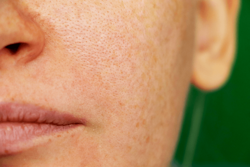 Different Types Of Hyperpigmentation Ldi Laser