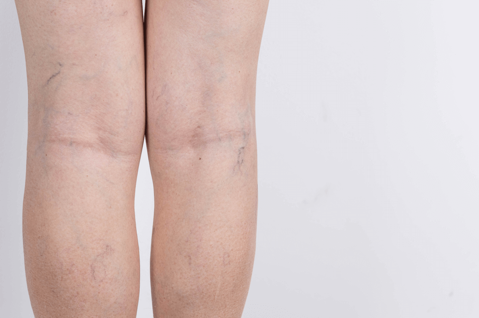 How Do I Treat Spider Veins?
