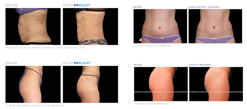 What Is Emsculpt?